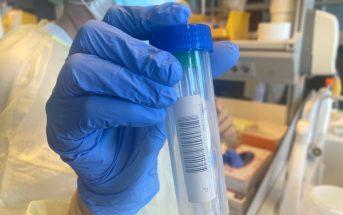 Corona-Test Kanaren Kanarische Inseln Covid-19 PCR-Test